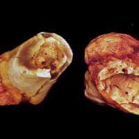 In un fossile il tumore più antico, ha 1,7 milioni di anni