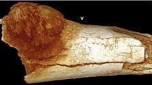 In un fossile il tumore più antico, ha 1,7 mln di anni