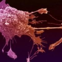 Tumore polmone, via libera Ue al farmaco che allunga la sopravvivenza