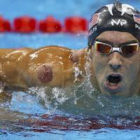Rio 2016, quegli strani 'cerchi rossi' sul corpo degli atleti: è la cupping therapy