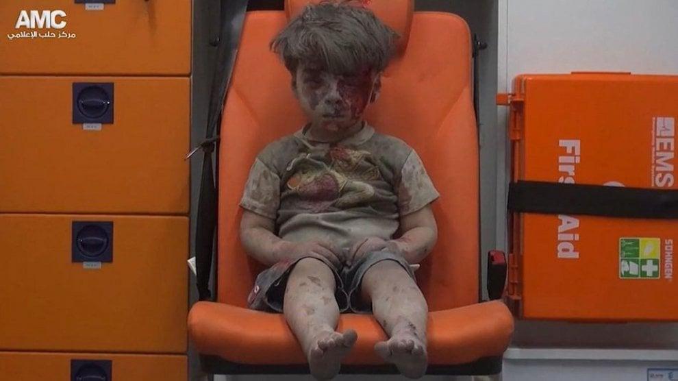 Siria, la tragedia di Aleppo negli occhi di un bimbo ferito