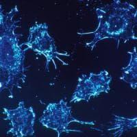Tumori, scoperto l'interruttore che 'spegne' il sistema immunitario