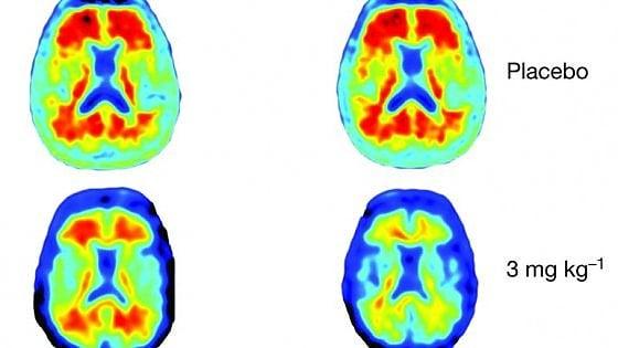 Alzheimer, da un anticorpo la nuova speranza