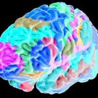 Smog nel cervello,