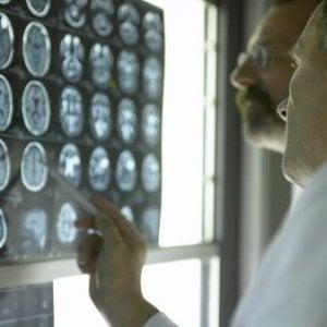 Mbi, nuova tecnica più efficace della mammografia nell'individuare il tumore al seno