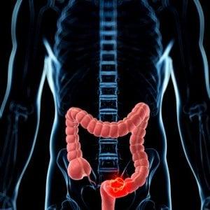 il cancro alla vescica o alla prostata provoca affaticamento