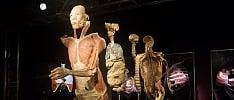 """""""Real bodies"""", la più grande mostra sui corpi e organi umani, sani e malati  Leggi l'articolo  di IRMA D'ARIA"""
