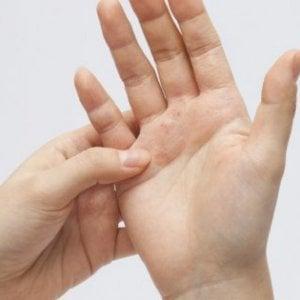 Olio di cardo ad applicazione di psoriasi