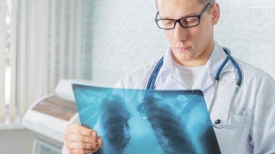 Il polmone sotto attacco. Il cancro si può abbattere con l'immunoterapia