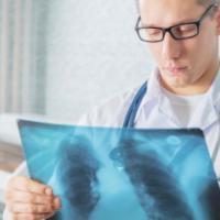 Il polmone sotto attacco, il cancro si può abbattere con l'immunoterapia