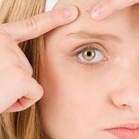 """Più acne, meno rughe. """"Il segreto è l'iper reattività della pelle"""""""