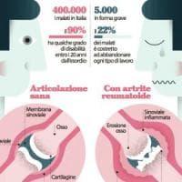 Artrite, l'interruttore che provoca l'infiammazione
