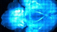 Neuroni e microchip umani, a Firenze i segreti del cervello