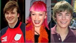 Sorrisi da urlo: i denti delle star prima e dopo