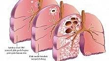 TBC, nel mondo  è più diffusa del previsto: In italia 10 casi al giorno  di MAURIZIO PAGANELLI