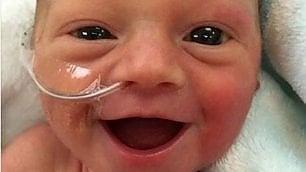 """Il sorriso della bimba prematura è contagioso: """"La vita è preziosa"""""""