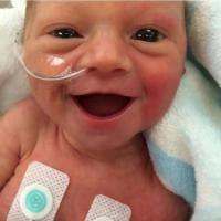 """Il sorriso della neonata prematura : """"La vita è preziosa"""""""