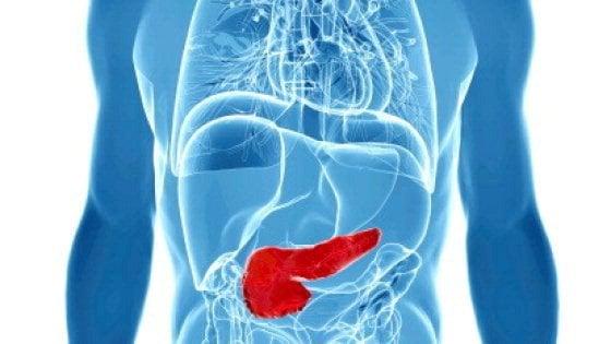 Tumore al pancreas: