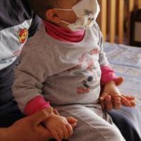 Bambini terminali: meno false speranze e più qualità di vita