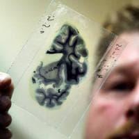 Alzheimer, negli Usa i malati diminuiscono del 24%