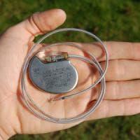 Pacemaker difettosi, allerta anche in Italia