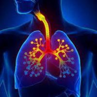 Tumore al polmone, infezioni e virus tra possibili cause