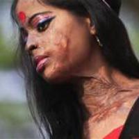 India, il coraggio e la forza di ricominciare delle  giovani donne sfregiate