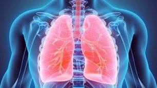 Al Gemelli si sperimenta uno screening  per il cancro al polmone