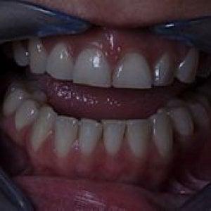 Bruxismo, l'ansia che spacca i denti. Segnali e consigli per evitarlo