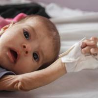 Save The Children: in Yemen 8 milioni di bambini senza cure mediche e 1000 morti per malnutrizione a settimana