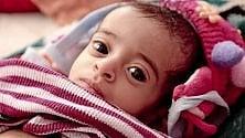Yemen: 8 milioni  di bambini senza  cure mediche  e 1000 morti  per malnutrizione  ogni settimana
