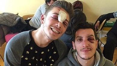 Aggressione omofoba a Milano due ragazzi picchiati e rapinati