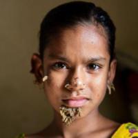 La 'bambina-albero' e la malattia della pelle che le deturpa il volto