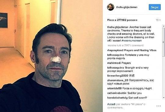 Hugh Jackman operato di tumore