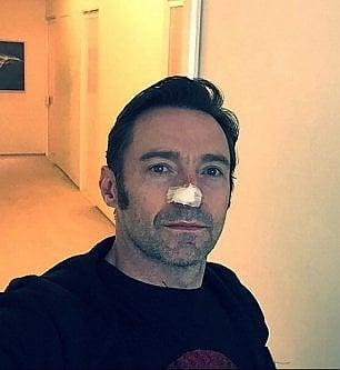 Hugh Jackman operato per la sesta volta di tumore