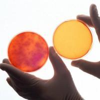 Contro la dermatite, una spremuta di batteri