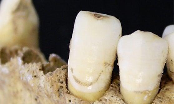 I Neanderthal si curavano con aspirina e antibiotici