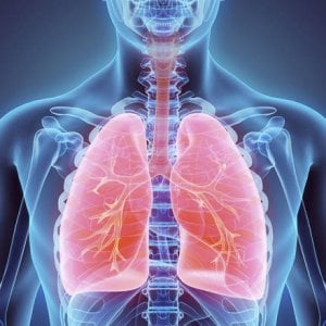 tumore al polmone con metastasi
