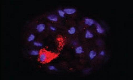 Distruggere il tumore al seno alla radice: bisogna colpire le staminali