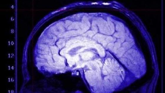 Glioma, individuati nuovi fattori genetici di rischio. I tumori cerebrali hanno meno segreti