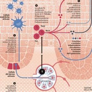 Psoriasi, i linfociti impazziti che scheggiano la pelle