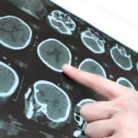 Parkinson, cellule cervello riprogrammate per combatterlo