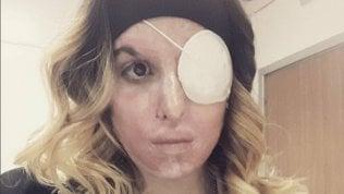 "Gessica Notaro posta una foto del suo volto su Instagram:""Primo selfie dopo tanto tempo"""