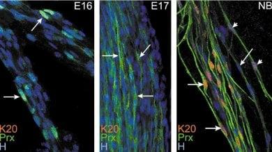 La cellula che fa cadere e ingrigire i capelli