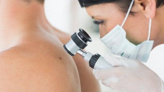 Melanoma: avanti tutta con l'immunoterapia