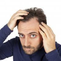 Alopecia, quella molecola potrebbe sconfiggerla