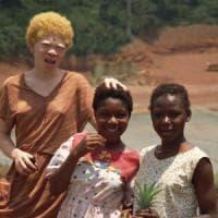 Albini, in alcuni Paesi africani viene data loro la caccia, come fossero