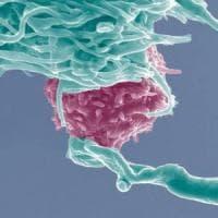 Scoperto l'interruttore del cancro: potrebbe fermare la proliferazione tumorale