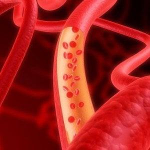 Emofilia A, con i nuovi farmaci meno infusioni ma più protezione