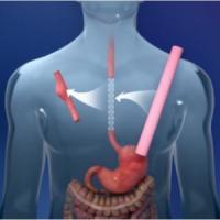Due italiani impiantano il primo esofago artificiale. Salvato un malato di cancro